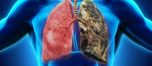 Lung Cancer Drug Receives FDA Priority Review