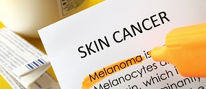 Case Report: Melanoma