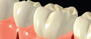 Dental Pain: Highly Prevalent and Challenging