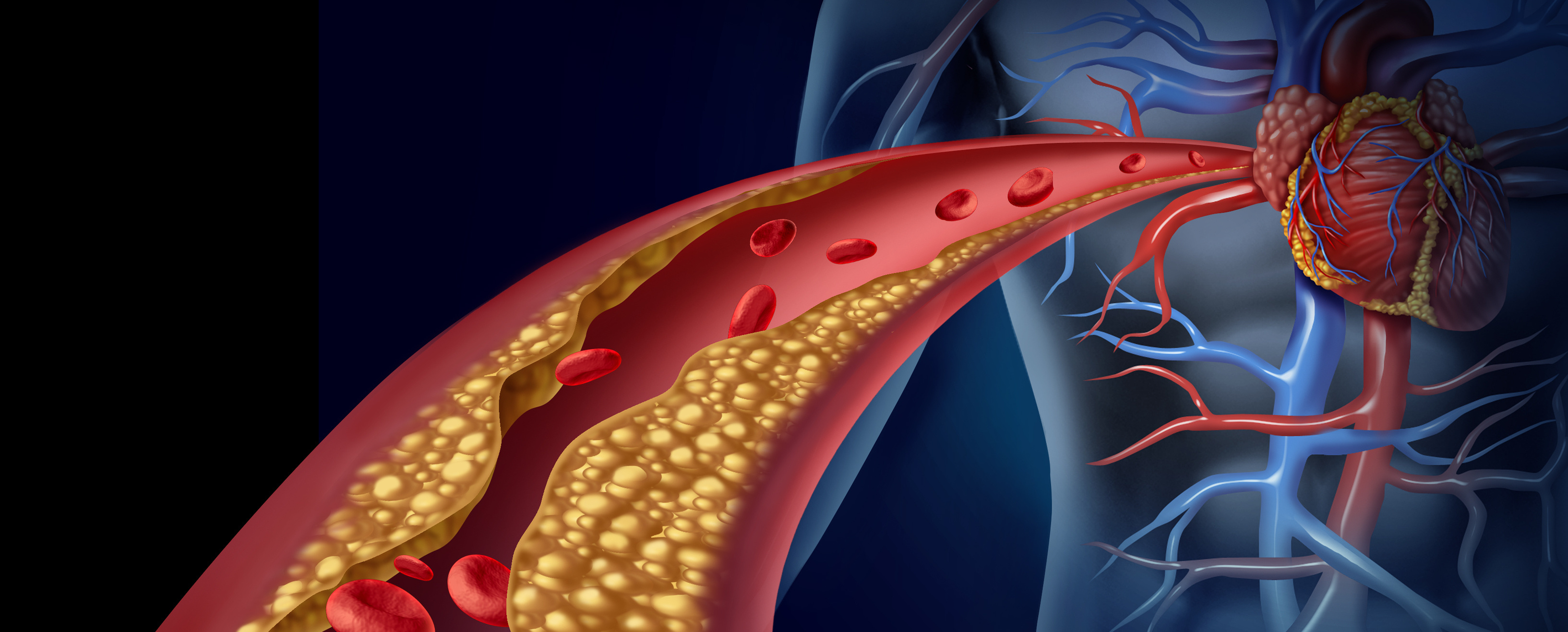Hypercholesterolemia Treatment Granted FDA Priority Review