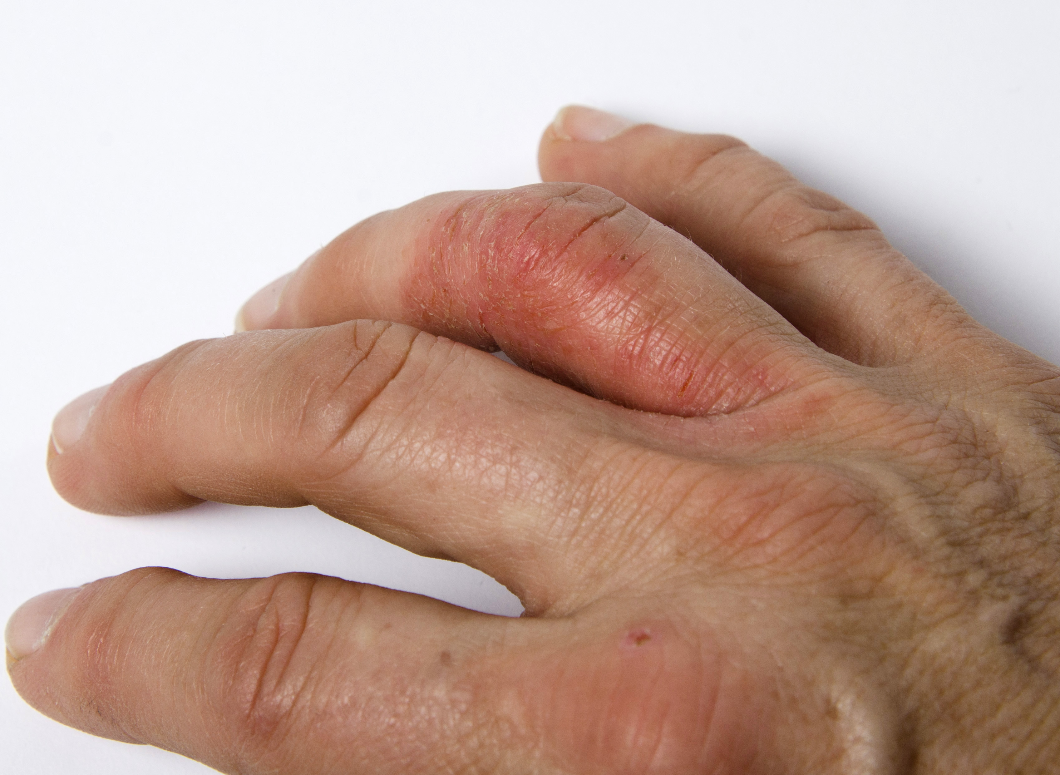 Trending News Today: Janssen Submits sBLA for Guselkumab in Psoriatic Arthritis