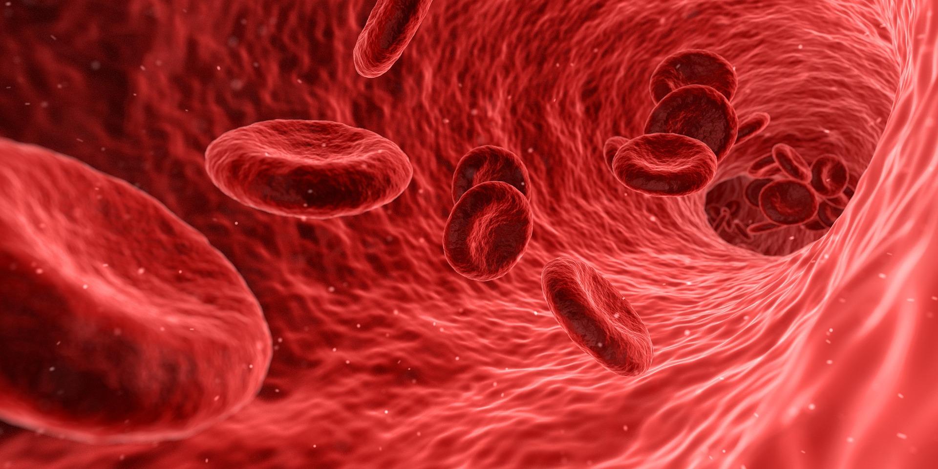 Precancerous Myeloma Progression Reduced by Lenalidomide