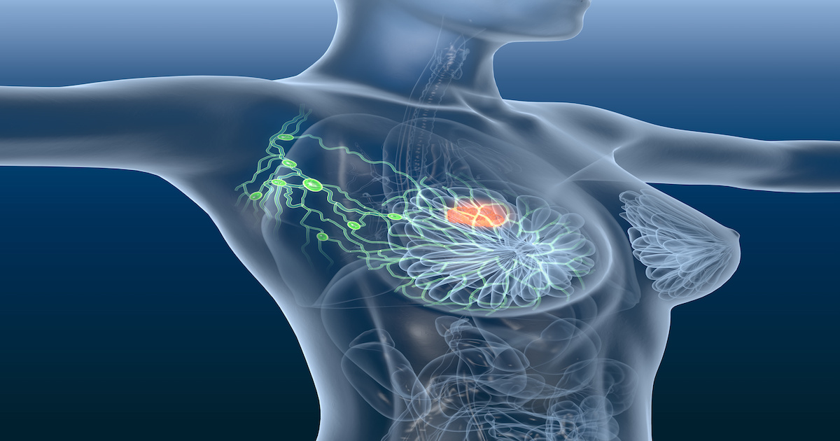 Two New Studies Report Significant Benefit With CDK4/6 Inhibitors in Advanced Breast Cancer
