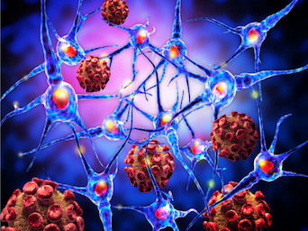 Largest Study on MS Discovers Critical Genetic Component to Disease