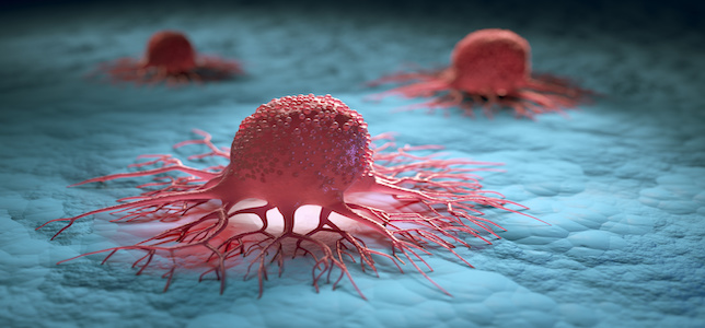 Trial Evaluating Avelumab in Epithelial Ovarian Cancer Fails to Meet Primary Endpoint