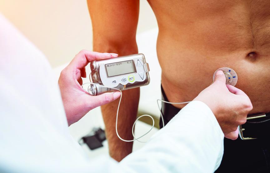Anti-interleukin-21, Liraglutide Combination Treatment in Adults Results in Sustained Insulin Secretion, Lower Insulin Dose