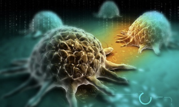 Combination Therapy Not Found to Improve Progression-Free Survival in Ovarian Cancer