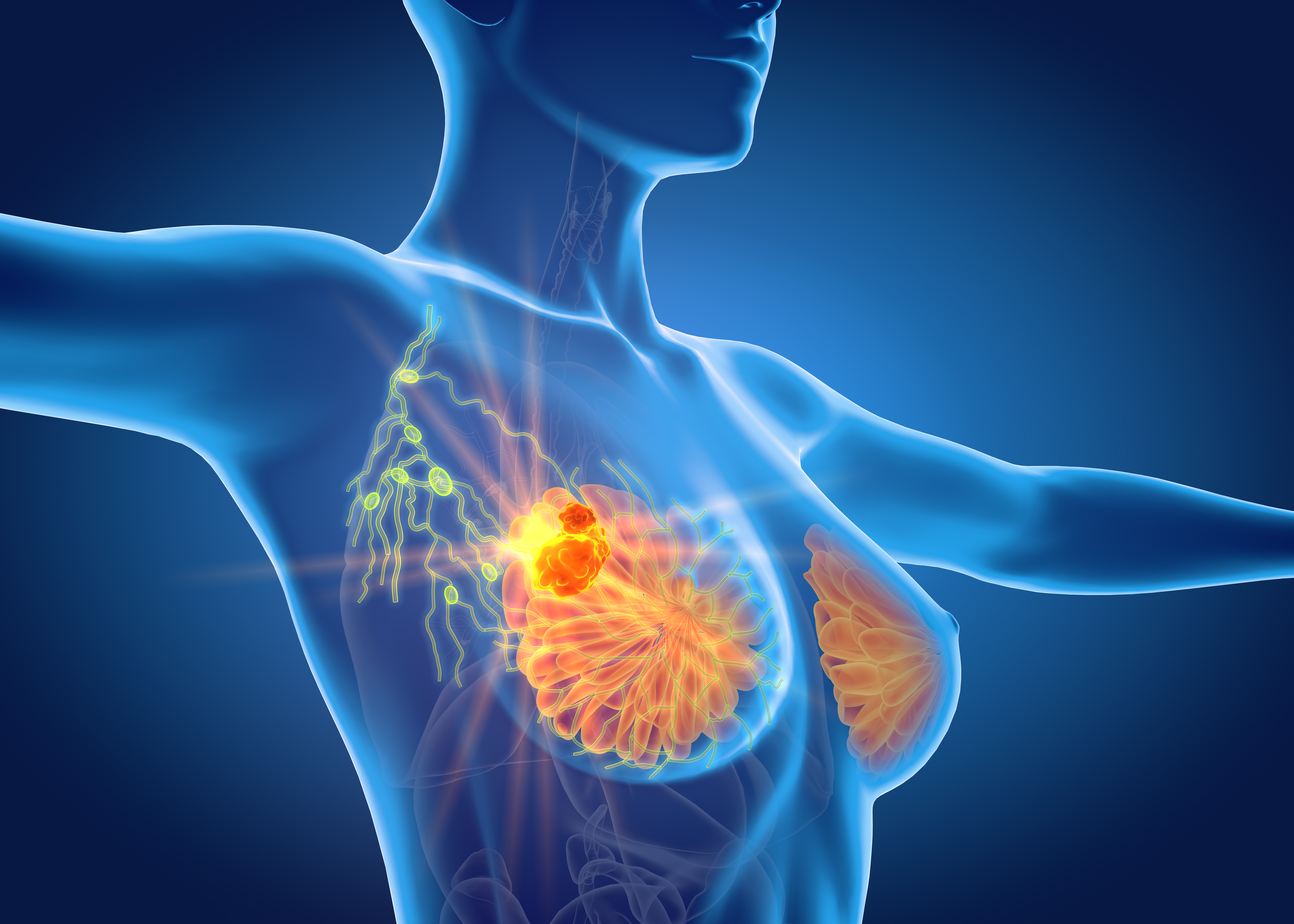 Updated Study Data Shows Oral Paclitaxel and Encequidar Is Beneficial in Patients with Metastatic Breast Cancer