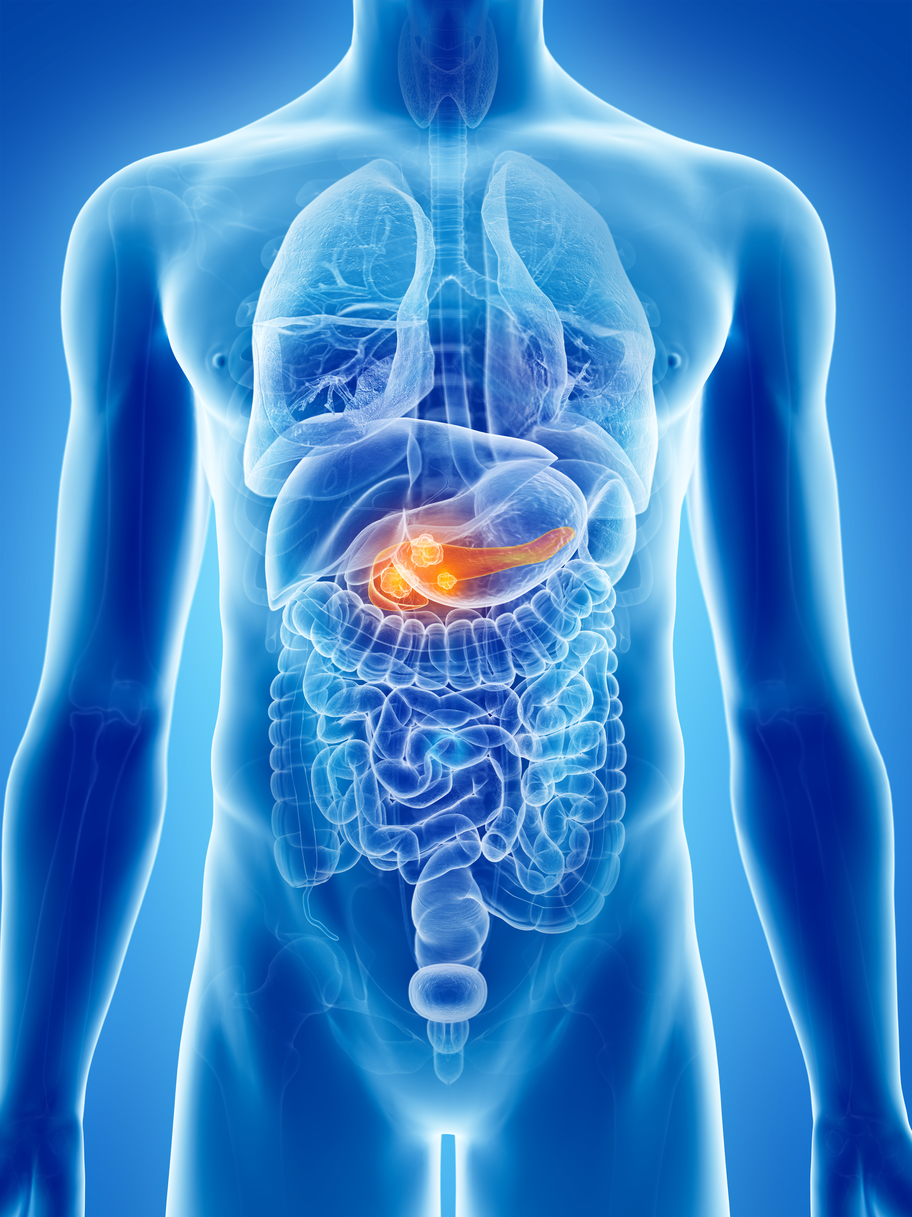 Efficacy and Safety of FOLFIRI for Previously Treated Advanced Pancreatic Cancer