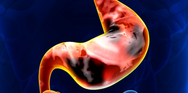Bemarituzumab, Chemotherapy Show Potential for Treatment of Gastric, Gastroesophageal Junction Cancers