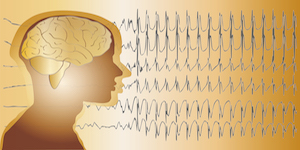 CDC Report: Epilepsy Rates Increasing Among Adults and Children