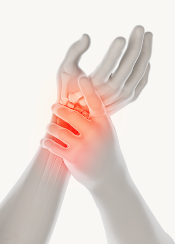 Fat-Soluble Vitamins Can Play Role in Managing Osteoarthritis