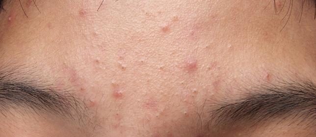 Sarecycline Granted FDA Approval for Acne Vulgaris
