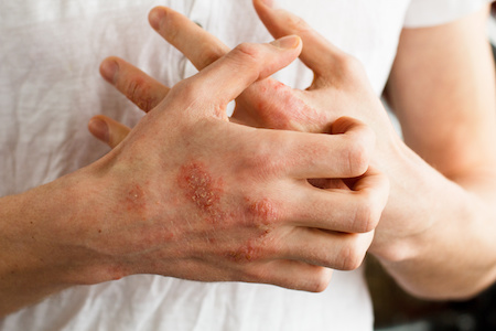 Analysis: Dupilumab Improves Quality of Life for Patients With Atopic Dermatitis