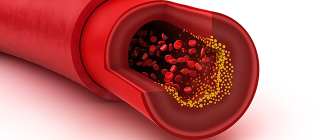 To Thin or Not to Thin: Anticoagulation in Patients Who Fall