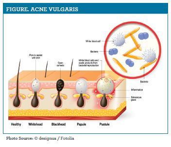 Management Of Acne Vulgaris