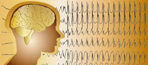 New Seizure Classifications Revealed at American Epilepsy Society Conference